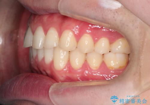 上の前歯に隙間ある インビザラインによる目立たない矯正の治療後