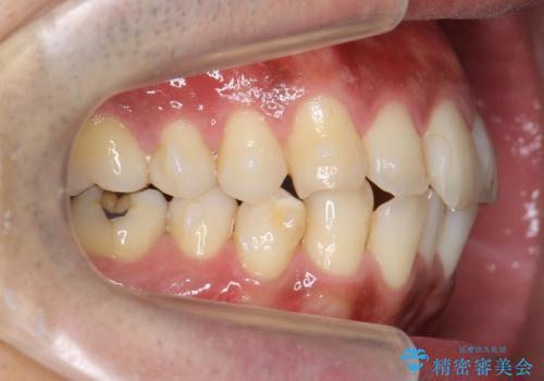 30代男性 歯を抜かないインビザライン 前歯のがたつきの治療の治療中