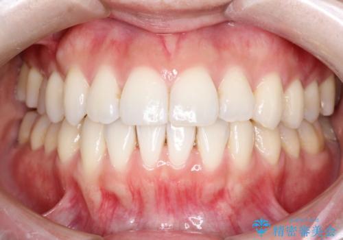 インビザラインでガタガタの治療 かんでいない奥歯を正しい位置への症例 治療後