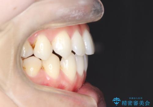 インビザラインでガタガタの治療 かんでいない奥歯を正しい位置への治療後