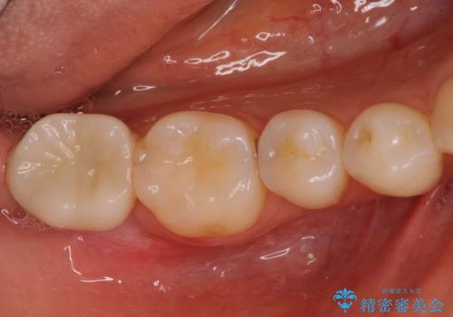 割れた奥歯 インプラントによる咬合回復の治療後