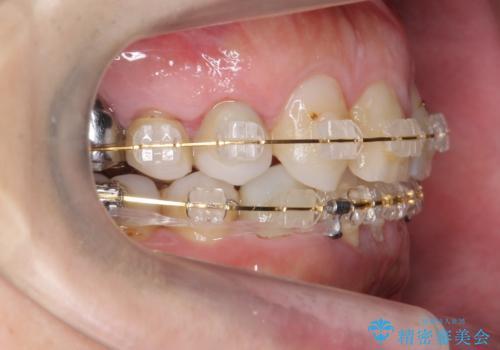 40代男性 総合歯科治療 矯正治療+虫歯治療の治療中