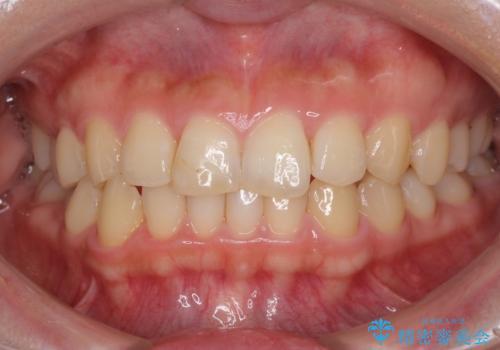 前歯のすきっぱ マウスピース矯正~ASOアライナー~の症例 治療後