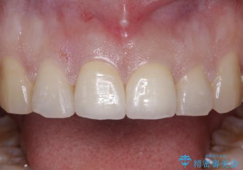 前歯が折れた!セラミックの被せもの。の治療後