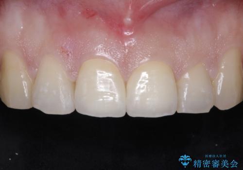 前歯が折れた!セラミックの被せもの。の症例 治療後