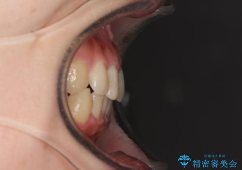 前歯のすきっぱ マウスピース矯正~ASOアライナー~の治療後