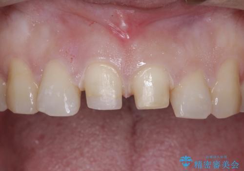 前歯が折れた!セラミックの被せもの。の治療中