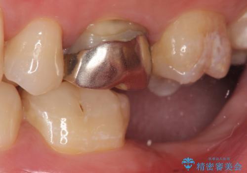 インプラント治療 虫歯で失った歯の補綴の治療前