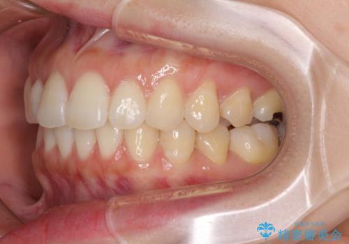 前歯のデコボコと出っ歯を治したい インビザラインによる非抜歯矯正治療の治療後