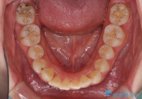 前歯を気にせず笑いたい インビザラインによる矯正治療の治療中