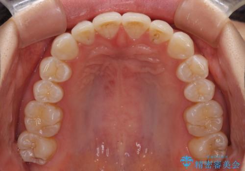 インビザライン・ライトによる前歯部叢生の改善の治療後