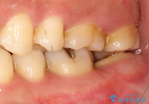 他院で仮歯が壊れまくる 高さの無い歯のゴールドクラウンの治療前
