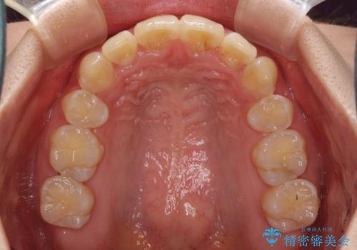 前歯の出っ歯とでこぼこ 目立たないワイヤーで抜歯矯正の治療後