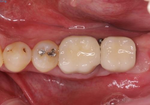インプラント周囲の歯肉移植~最終的なセラミックを入れるまでの治療後