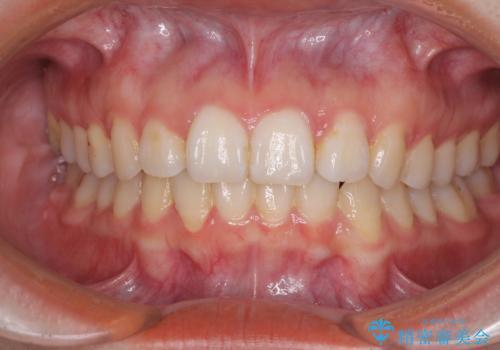 前歯を気にせず笑いたい インビザラインによる矯正治療の治療後