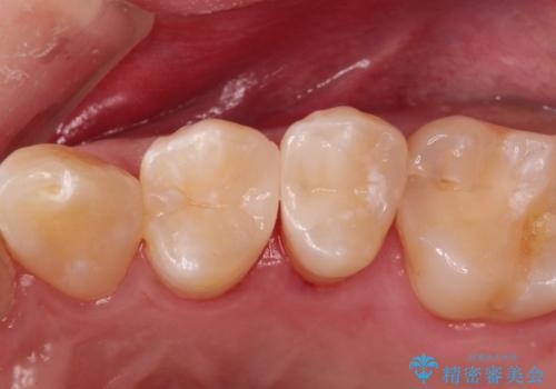 拡大鏡を用いたむし歯の治療。精度の高いセラミックインレーの症例 治療後