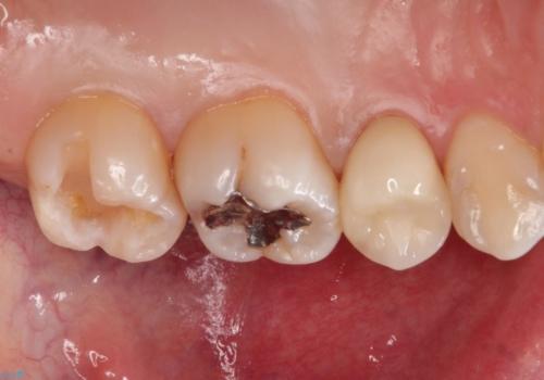 矯正後に、より美しい歯への治療中