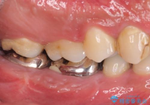 オールセラミッククラウン・歯冠長延長術 抜歯後の補綴の治療前