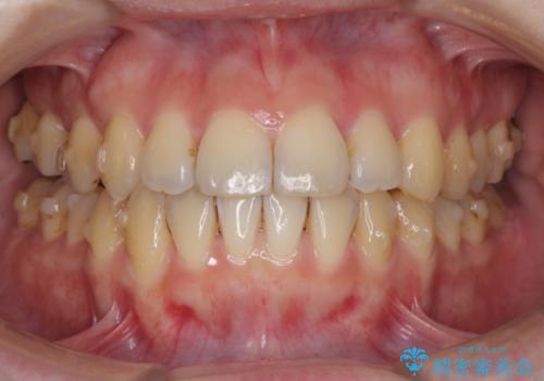 インビザラインでガタガタの治療 かんでいない奥歯を正しい位置への治療中