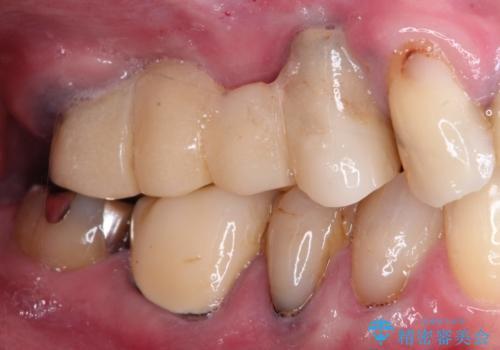 ぐらぐらの奥歯 インプラントでしっかりと咬めるようにの治療前