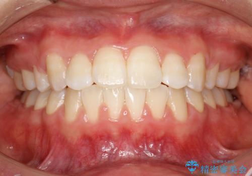 王道・従来のワイヤー矯正 表の装置で手早くきれいな歯並びをの症例 治療後
