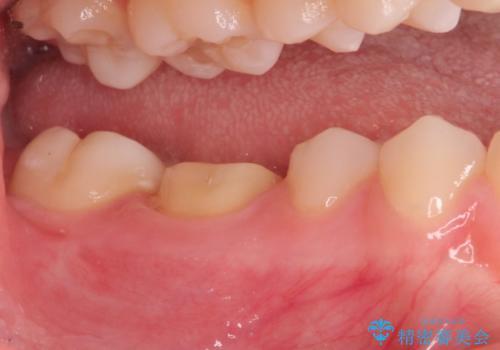 神経まで届く深いむし歯。根管治療~セラミックの被せものの治療中