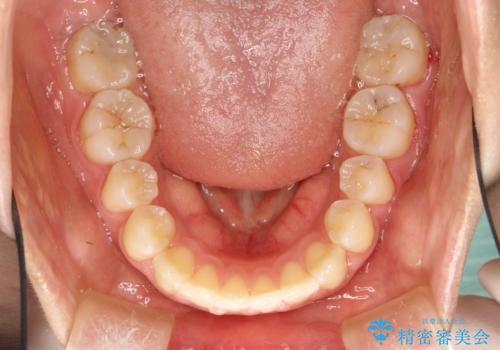 王道・従来のワイヤー矯正 表の装置で手早くきれいな歯並びをの治療後