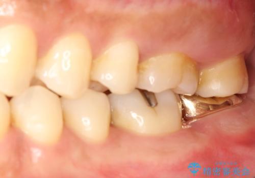 他院で仮歯が壊れまくる 高さの無い歯のゴールドクラウンの治療後