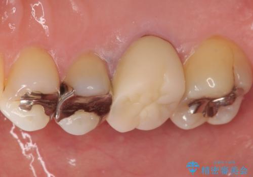 笑った時に見える銀歯を白くしたい 30代女性の治療前
