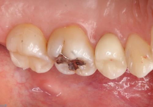 矯正後に、より美しい歯への治療後