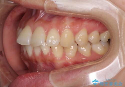前歯のデコボコと出っ歯を治したい インビザラインによる非抜歯矯正治療の治療前