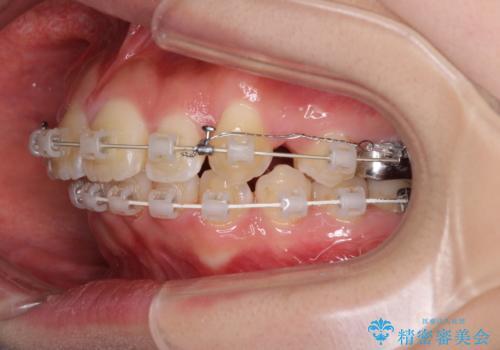 前歯の出っ歯とでこぼこ 目立たないワイヤーで抜歯矯正の治療中