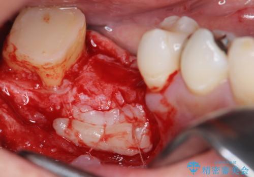 オールセラミッククラウン・歯冠長延長術 抜歯後の補綴の治療中