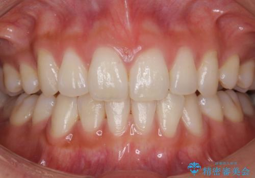 結婚式前に歯を白くきれいに。の治療前