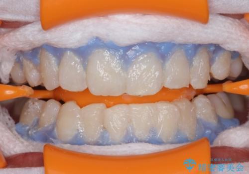 結婚式前に歯を白くきれいに。の治療中