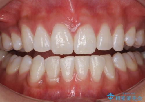 結婚式前に歯を白くきれいに。の治療後