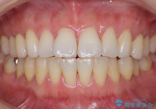 PMTC+ホワイトニングエクセレントコースで白く輝く歯に。の治療前
