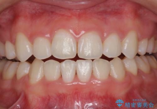 矯正治療後、ホワイトニングで歯を白くきれいに!