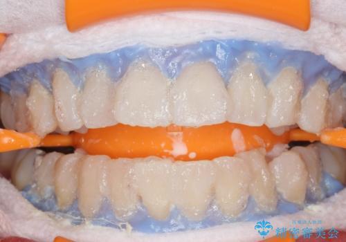PMTC+ホワイトニングエクセレントコースで白く輝く歯に。の治療中