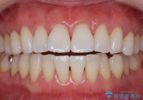 PMTC+ホワイトニングエクセレントコースで白く輝く歯に。の治療後