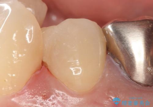 しみる歯の治療 セラミックインレーの治療後
