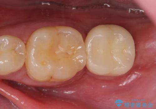 インプラント治療 虫歯で失った歯の補綴