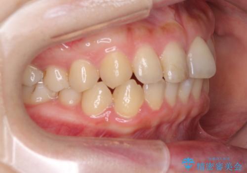 前歯のすきっぱ マウスピース矯正~ASOアライナー~の治療前