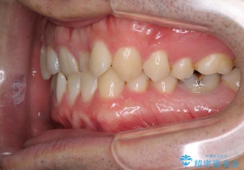 咬みにくい! インビザラインによる反対咬合の改善の治療前