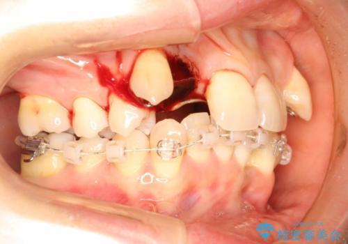 重度歯周炎の歯を抜歯してワイヤー矯正を 変則的なかみ合わせで仕上げる