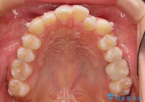 前歯のガタガタを結婚式前にキレイにしたいの治療中