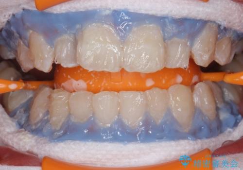 PMTC30分コースとホワイトニングエクセレントコースを併用して白い歯に。の治療中