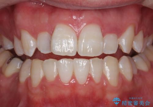 PMTC30分コースとホワイトニングエクセレントコースを併用して白い歯に。の治療後