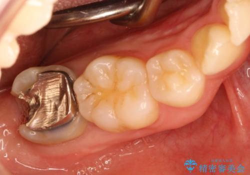 歯ぐきの深い位置まで虫歯が 歯周外科→被せもの による奥歯の治療の治療前