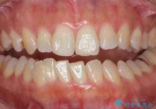 黄ばんだ歯をホワイトニングで白く。の治療前